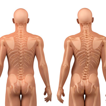 scoliosis-s1-facts.jpg