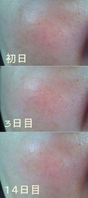 米肌 澄肌美白化粧水&エッセンス。