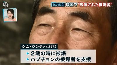 私たちは強制的に日本に連れて行かれて被爆した。本当の原爆被害者は韓国人です。