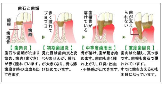 歯周病(人)