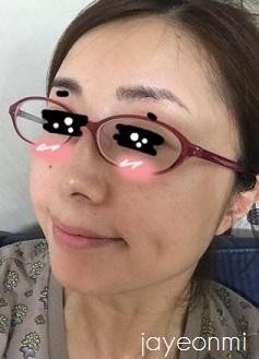 リーダーズ皮膚科_狎鴎亭店_糸_リフティング (14)