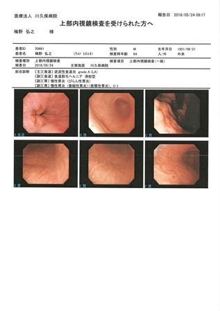 胃内視鏡検査