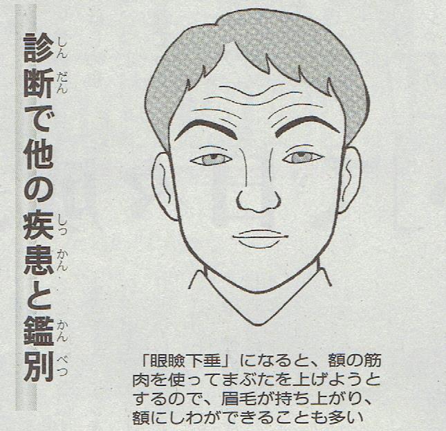 眼瞼下垂1