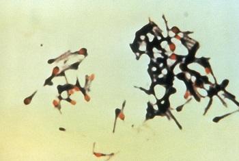 破傷風菌の電子顕微鏡写真