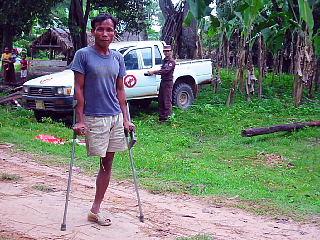 いまだに地雷原の中に住む地雷被害者