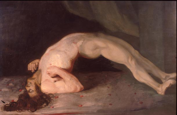 破傷風による筋肉の発作で苦しむ人の絵(1809年チャールズ・ベル作)。最悪の場合背骨が折れることもある。